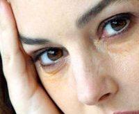 kruhy pod očami ženám nepristanú